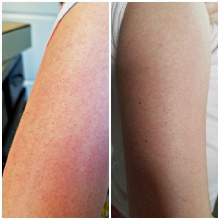 Keratosis pilaris before and after MicrodermMD